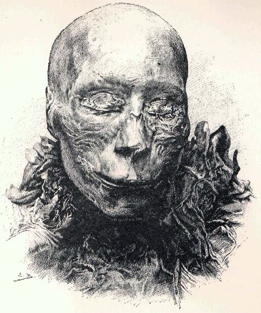 thutmosei-mummy-head